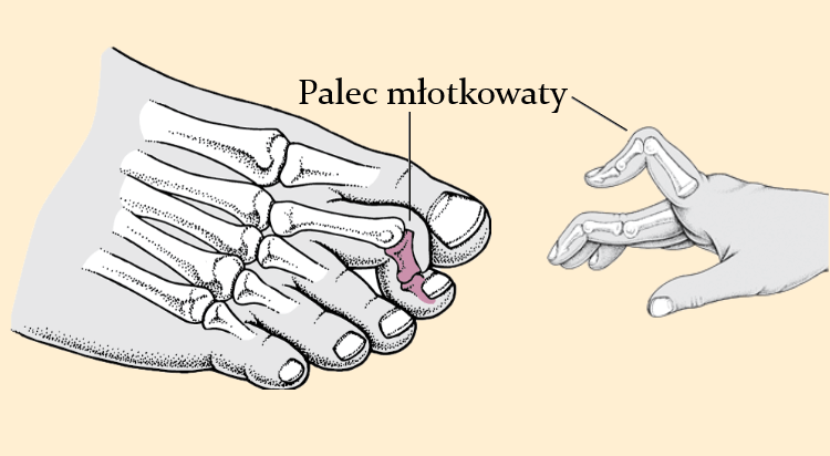 Anatomiczny przekrój palca młotkowatego u stopy i dłoni