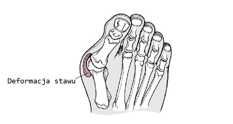 Haluksy to deformacją stawu śródstopno-paliczkowego dużego palca stopy