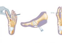 Jak wygląda operacja haluksa? Przygotowanie, przebieg i rekonwalescencja po zabiegu