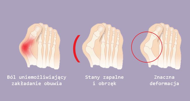 Wskazania do przeprowadzenia operacji haluksa